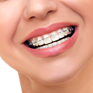 Restore the appearance of teeth, gums and bite, Christchurch
